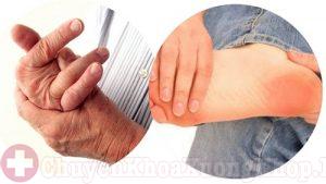 Làm thế nào phân biệt bệnh viêm khớp dạng thấp và bệnh gout?