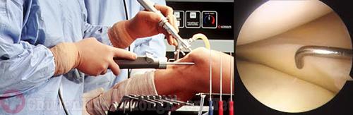 Phẫu thuật thay khớp gối nhân tạo bao nhiêu tiền ?