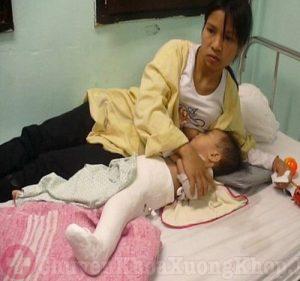 Bệnh viêm khớp háng ở trẻ em và những điều cha mẹ cần lưu ý