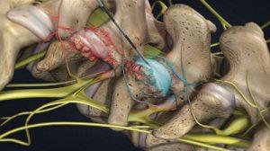 Cách phân biệt bệnh thoát vị đĩa đệm và gai cột sống