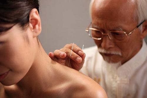 Liệu pháp châm cứu trị đau mỏi vai gáy, có nên hay không?