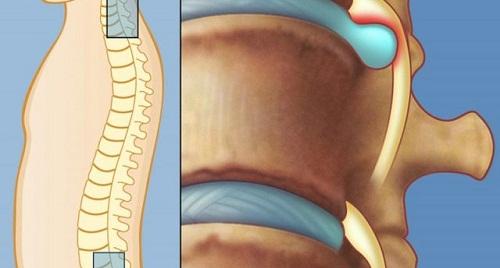 Tìm hiểu về bệnh thoát vị đĩa đệm cột sống thắt lưng l5 s1