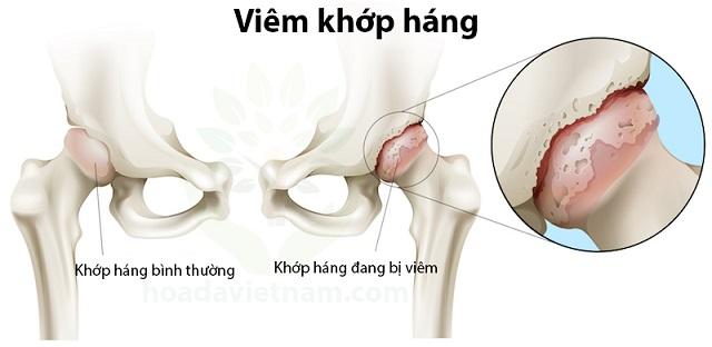 Hình ảnh khớp háng bình thường và khớp háng bị viêm - viem khop hang