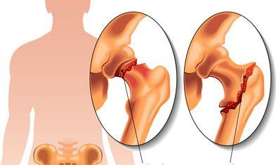 Các chấn thương khớp háng có thể dẫn đến tình trạng viêm khớp háng