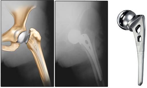 Phẫu thuật thay khớp háng nhân tạo bán phần