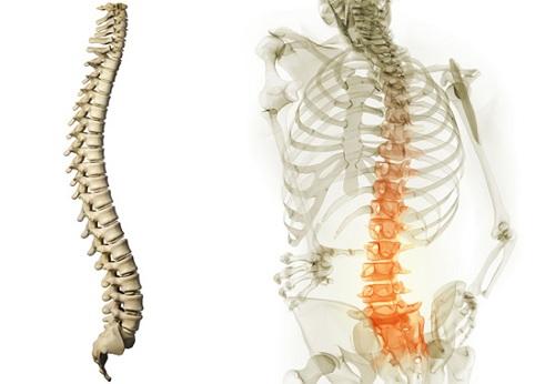 Thoái hóa cột sống thắt lưng dẫn đến đau thắt lưng