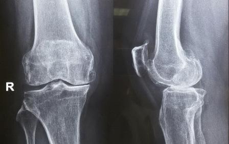 Chẩn đoán hình ảnh giúp đánh giá tình trạng viêm sưng đau các khớp