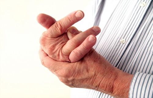 Dấu hiệu cứng khớp ở bệnh nhân viêm khớp