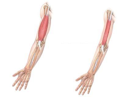 Viêm khớp kéo dài có thể làm teo cơ