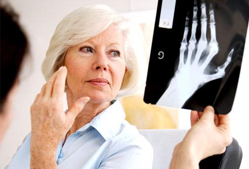 Tuổi tác cũng là yếu tố nguy cơ của bệnh viêm đa khớp dạng thấp - Benh viem da khop