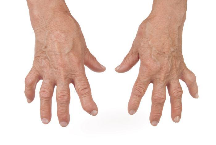 Người bệnh viêm đa khớp dạng thấp luôn có dấu hiệu đối xứng
