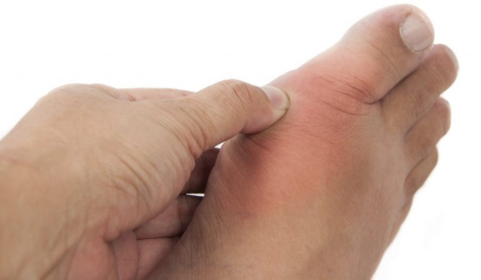 Đau khớp, sưng khớp do viêm khớp dạng thấp gây ra