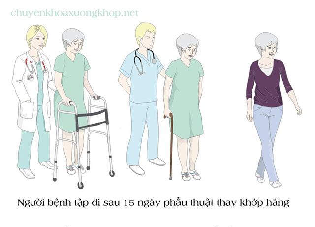 Người bệnh tập đi sau khi các khớp xương ổn định