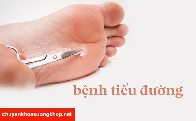 Bệnh thần kinh tiểu đường gây nhức chân từ đầu gối trở xuống