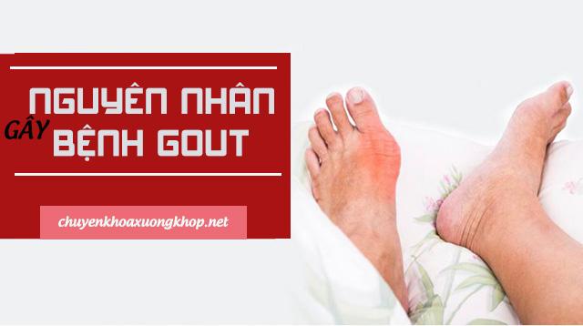 Những nguyên nhân chính gây ra bệnh Gout (gút - nguyên nhân bị bệnh gout