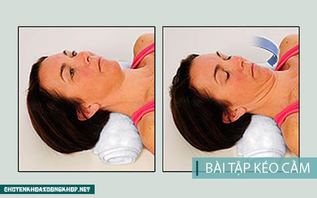 Vật lý trị liệu chữa thoát vị đĩa đệm cổ