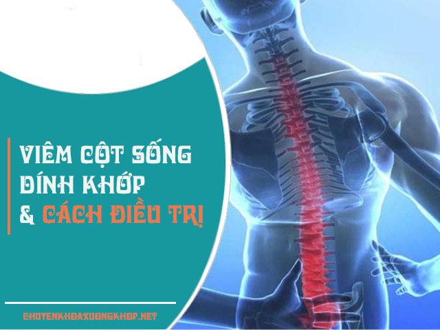 Viêm cột sống dính khớp là gì? viêm cột sống dính khớp theo đông y