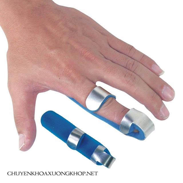 Điều trị trật khớp ngón tay bằng cách nẹp xương