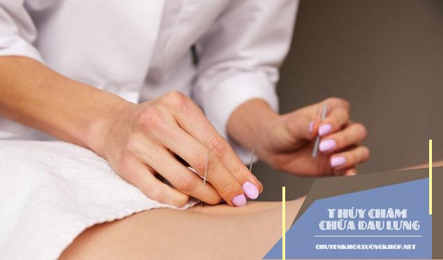 Phương pháp thủy châm chữa đau lưng có hiệu quả không?