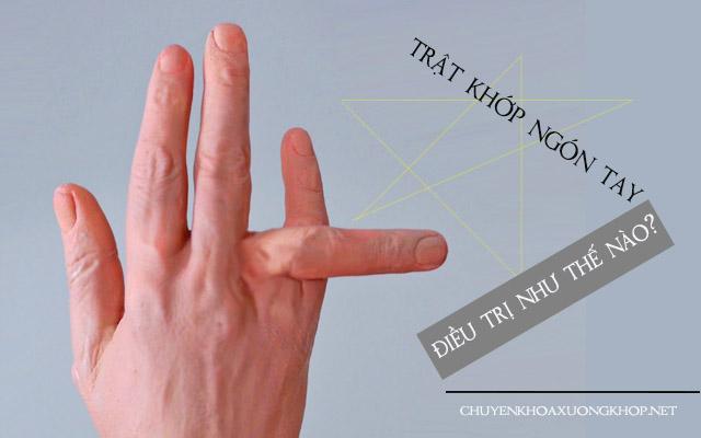 Làm gì khi bị trật khớp ngón tay, bao lâu thì khỏi? trật khớp ngón tay cái