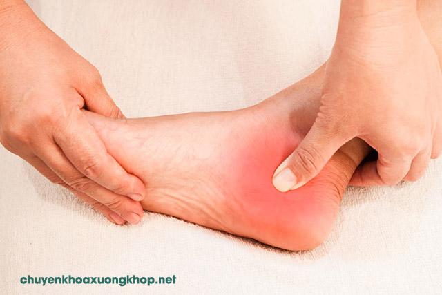 Triệu chứng viêm bao hoạt dịch gân gót chân
