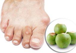 chữa bệnh Gout bằng dừa xiêm