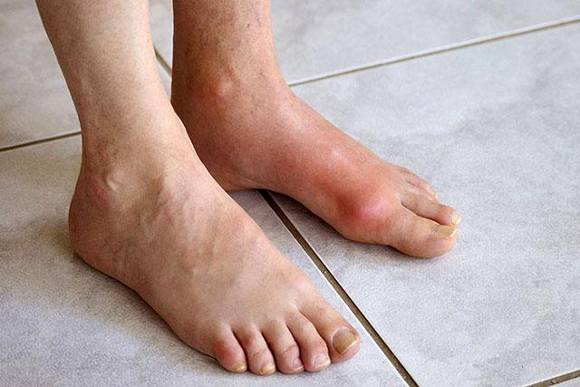 Bị bệnh Gout có chữa khỏi được không