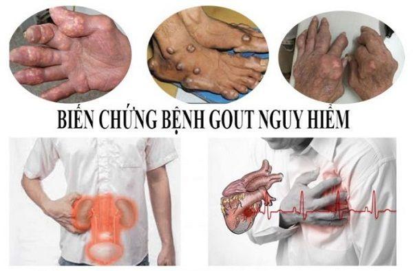 Biến chứng khủng khiếp do bệnh gout
