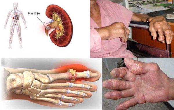 Hỗ trợ điều trị gout sai cách khiến bệnh nặng hơn