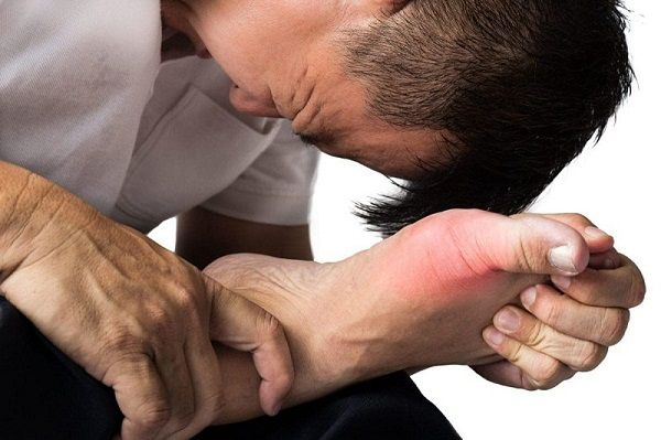 Bệnh gout gây nhiều đau đớn