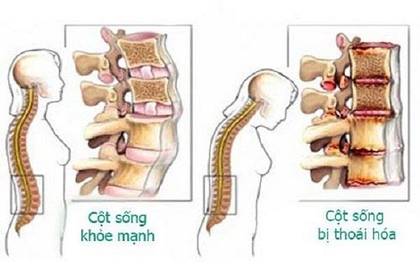 Thoái hóa cột sống thắt lưng chèn ép dây thần kinh gây đau đớn, tàn phế