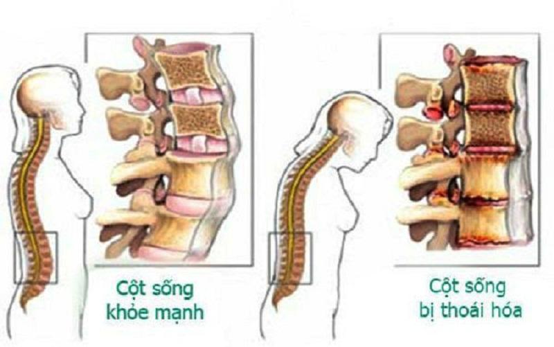 Biểu hiện thoái hóa cột sống thắt lưng